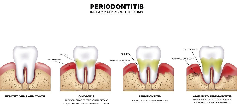 Dangers of Gum Disease