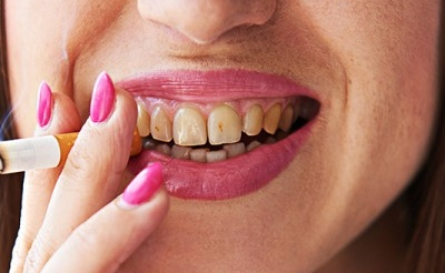 Don't Light Up: Smoking Increases the Risk of Dental Implant Failure