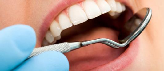 Dental Filling Failures Linked to Smoking, Drinking, Genetics