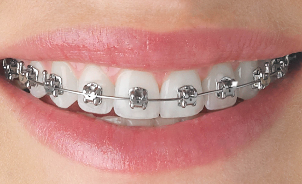 All You Need to Know About Braces – Placing the Braces
