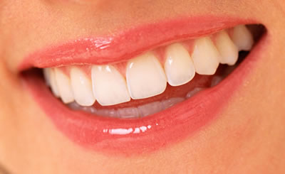 All You Need to Know About Braces – Removal and Retention